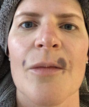 Lip Filler Bruising